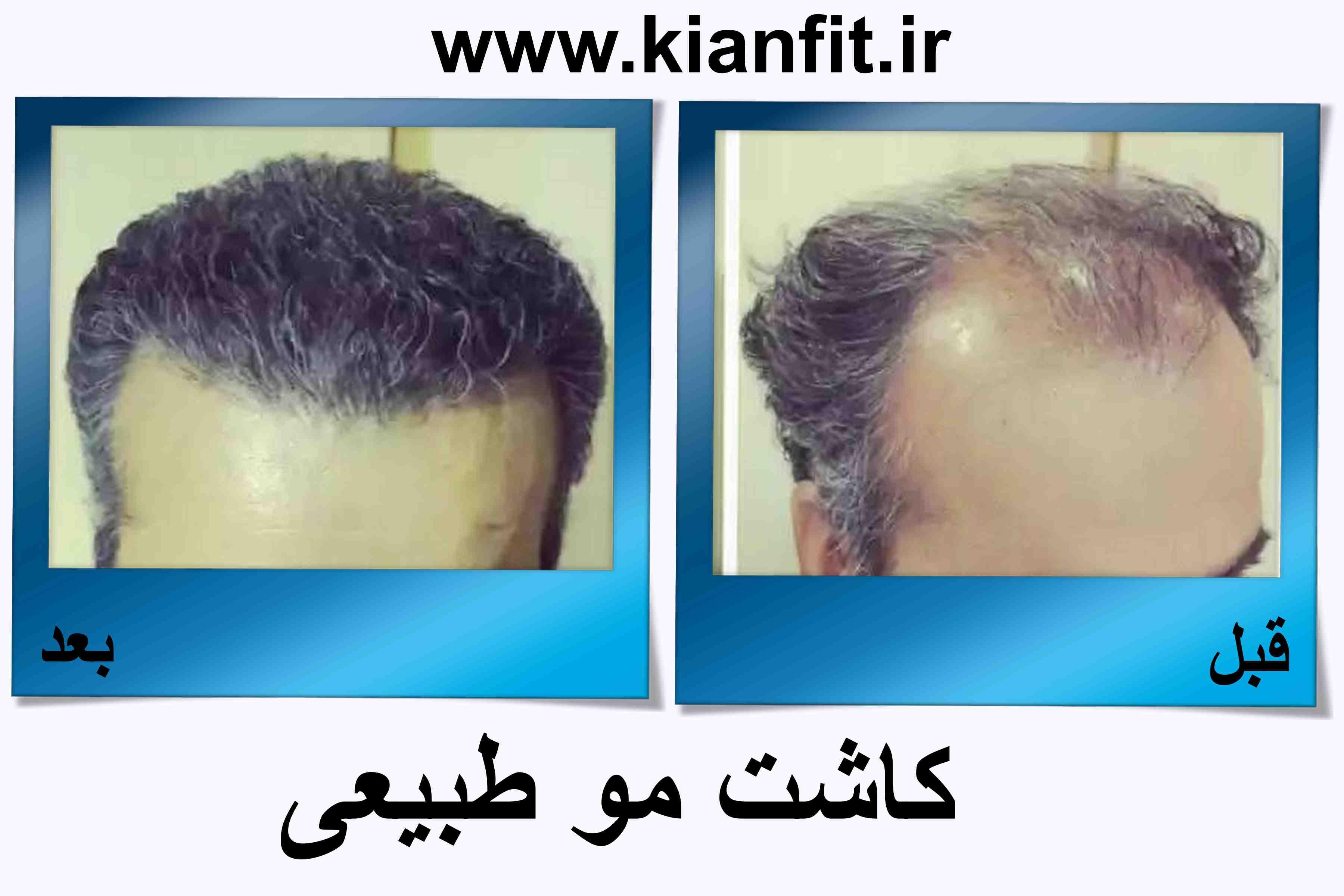 کاشت مو طبیعی در رشت