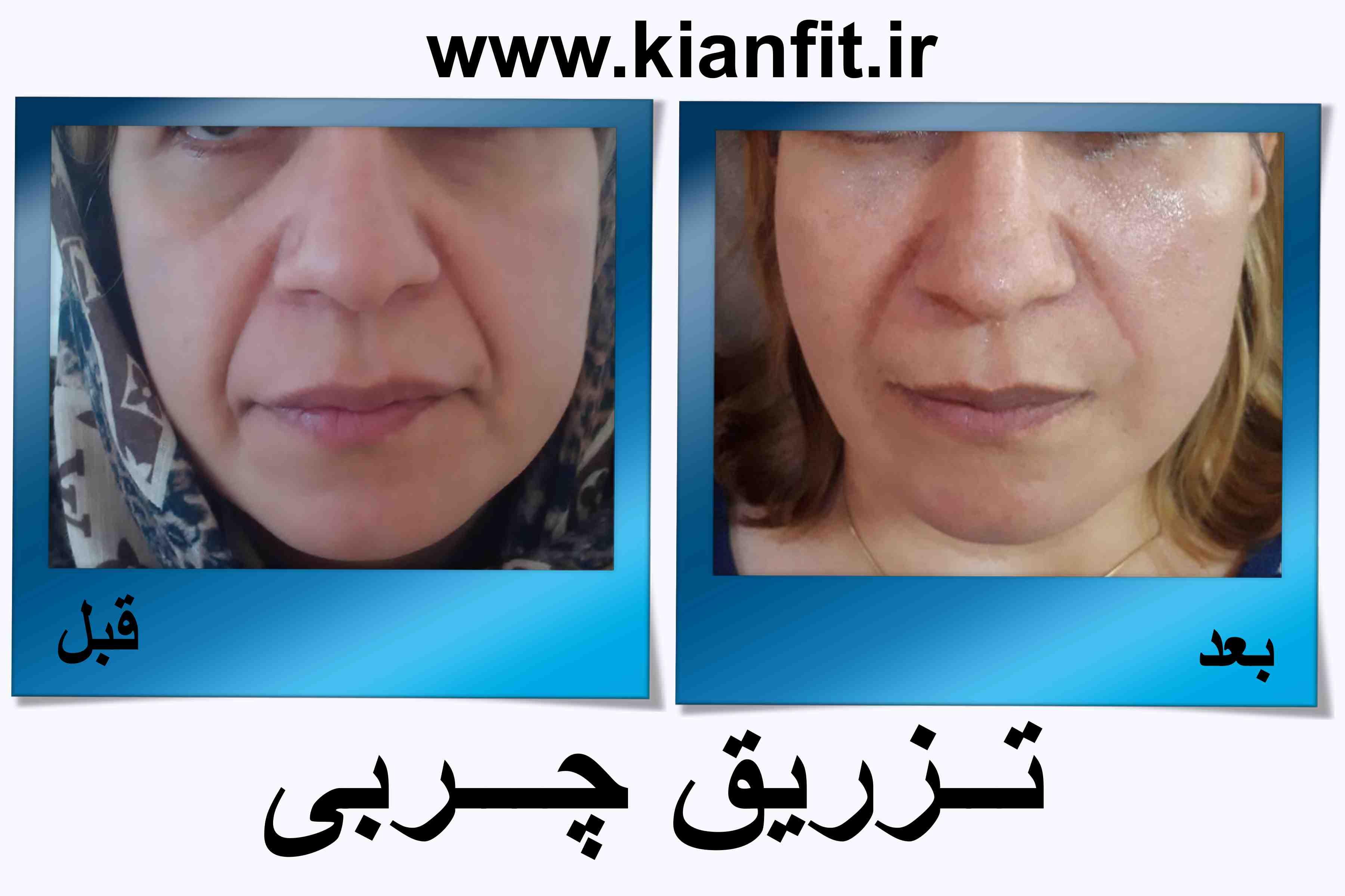 تزریق چربی صورت در رشت