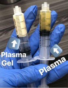 تزریق پلاسما ژل در رشت